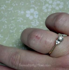 Day 193: Burnt Finger